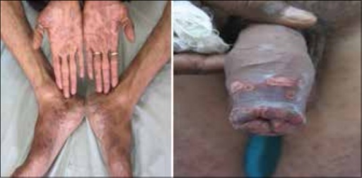 Palmoplantar syphilides in a patient with secondary syphilis (left) with concomitant chancroid (right)
