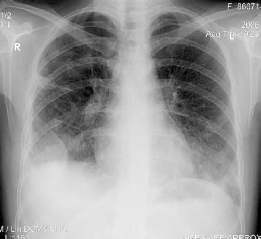 Chest X-ray of a 19-year-old woman with long standing CD treated with mesalazine. Pulmonary infiltrations and right sided pleural effusion are visible. Due to the presence of fever, dry cough and pleural chest pain, pleuropneumonia was diagnosed and antibiotics were introduced. Because of lack of response to antimicrobial treatment she was referred to a pulmonary physician, who recommended withdrawal of mesalazine. After initial improvement, the general and radiological symptoms relapsed (see Figure 2), suggesting the possibility of IBD-related pathology