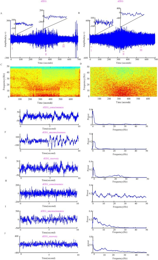 Real EEG and simulated EEG.(A) rEEG time series and (B) sEEG time series for a single subject. (C) and (D) show the EEG frequency spectrum of the two EEG signals. The dark red color denotes higher power and the blue color denotes lower power. (E), (F) and (G) show rEEG series of 10 s during consciousness (rEEG_consciousness), unconsciousness (rEEG_unconsciousness), recovery (rEEG_recovery) and the corresponding power spectra, respectively. (H), (I) and (J) show sEEG of 10 s during consciousness (sEEG_consciousness), unconsciousness (sEEG_unconsciousness), recovery (sEEG_recovery) and the corresponding power spectra, respectively. The 10 s EEG epochs extracted are labeled as I,II, III in the integral signal.