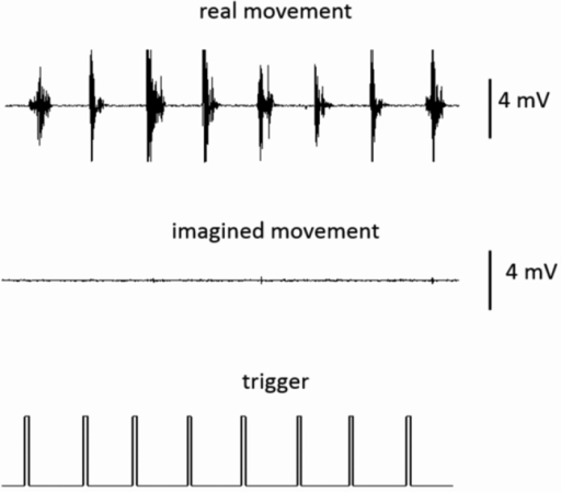 A representative electromyogram amplitude during real and imagined movements.Robust muscle activities were observed during the real movement, but not during imagined movement, after the presentation of the execution cue (trigger).