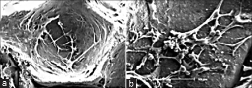Scanning electron microscopy technique: (a) Stem cells adhered in the pores of scaffold (b) extracellular matrix as deposition of granular products secreted by differentiated osteoblasts in the pores of hydroxyapatite/tricalcium phosphate scaffold
