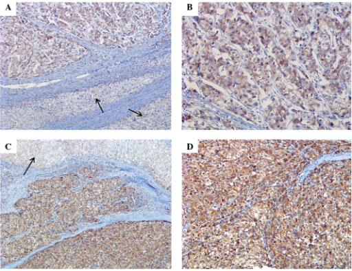 Expression of Twist. (A) Weak and diffuse staining of twist in HCC in contrast to adjacent normal liver tissue (arrow) (magnification, ×10). (B) Enlarged image of (A) (magnification, ×20). (C) Strong and diffuse staining of twist in HCC in contrast to adjacent normal liver tissue (arrow) (magnification, ×10). (D) Enlarged image of (C) (magnification, ×20). HCC, hepatocellular carcinoma.
