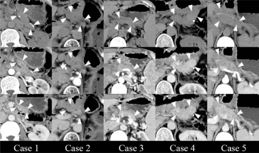 Postoperative follow-up imaging studies. CT showed that the middle segments of pancreas were well preserved in all cases without inflammation or necrosis (area indicated by arrowheads). CT volumetry showed a preservation of 18.4%, 39.5%, 38.9%, 35.8%, and 18.2% of total pancreatic volume in the 5 cases, respectively, while average CT values of the remaining pancreas parenchyma at the portal venous phase were 60.1 HU, 94.8 HU, 103.4 HU, 92.5 HU, and 94.0 HU, respectively. CT = computed tomography.