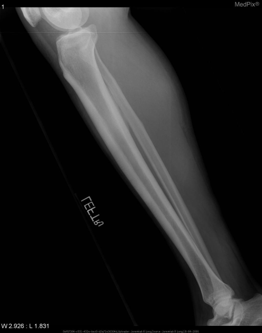 Lateral radiographs of the bilateral lower extremities demonstrate multiple thin cortical lucencies at the anterior aspect of the mid-tibial diaphyses extending into, but not through the anterior cortices consistent with stress fractures.