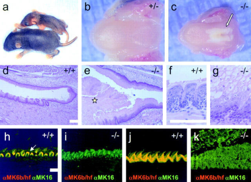 Oral lesions in MK6a/b−/− mice occur in the back of the oral cavity where MK6b expression in the tongue is highest in wild-type animals. (a) MK6a/b−/− pup (top) at 8 d showing signs of starvation. A wild-type littermate is shown for comparison. (b) Lower jaw of 8-d-old MK6a/b+/− pup. The tongue appears smooth. (c) Lower jaw of 8-d-old MK6a/b−/− pup. Note the white plaque in the back and center of the tongue (arrow). (d) MK6a/b+/+ tongue and palate in the back of the oral cavity of 10-d-old pup. (e) MK6a/b−/− tongue and palate in the back of the oral cavity of 10-d-old pup, showing plaque formation on the tongue and palate epithelium. Note that the plaque on the tongue (⋆) fills almost the entire oral cavity. (f) MK6a/b+/+ tongue epithelium at high magnification showing the appearance of the papillae from the back of the tongue. (g) MK6a/b−/− tongue epithelium at high magnification showing that the plaque is composed of cell remnants that remain attached to each other. Note that the superficial cells of the papillae appear to be losing their cytoplasmic content and nuclei. (h–k) Images stained with MK6b/hf (red) and MK16 (green) antibodies; areas with overlapping staining appear yellow. (h) MK6a/b+/+, note that in the middle of the tongue MK6b is restricted to the uppermost cells of the papillae (arrow). (i) The middle of the MK6a/b−/− tongue epithelium appears intact in spite of the absence of MK6. (j) MK6a/b+/+, note that in the back of the tongue MK6b is expressed throughout the papillae. (k) MK6a/b−/− lesion in the back of the tongue epithelium, which corresponds to the site where MK6b expression is most widespread in wild-type tongue. Bars, 100 μm.