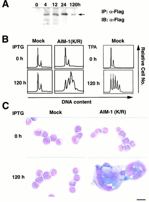 Effects of the induced expression of Flag-AIM-1(K/R) on CMK cells. (A) Western blot analysis on the induction of Flag-AIM-1(K/R) before and after IPTG treatment. CMK/AIM-1(K/R) cells were cultured with 1 mM of IPTG for the times indicated. Total cell lysates were immunoprecipitated (IP) and immunoblotted (IB) with the anti-Flag antibody M2. (B) DNA content analyses on mock-transfected CMK and CMK/AIM-1(K/R). Mock-transfected CMK and CMK/AIM-1(K/R) were culture with IPTG for 120 h. Also, mock-transfected CMK was treated with 1 nM TPA for 120 h. DNA content analyses were performed before and after the cultures. (C) Light micrographs of cells. Cytocentrifugation preparations of each clone, before and after the 120-h IPTG treatment, were stained with May-Grunwald-Giemsa. Bar, 10 μm.