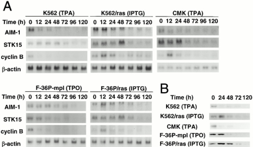 Changes in expression of AIM-1, STK15, and cyclin B during megakaryocytic differentiation of various leukemia cell lines. (A) Northern blot analysis of AIM-1, STK15, and cyclin B mRNA expression. Total cellular RNA was isolated from the cells in Fig. 2, and subjected to Northern blot analysis. The filters were hybridized with 32P-labeled probes for AIM-1, STK15, cyclin B, and β-actin. (B) Western blot analysis of cyclin B1 expression. Total cell lysates were prepared from the cells in Fig. 2, and then subjected to immunoblot analysis with the anti-cyclin B1 antibody H-433.