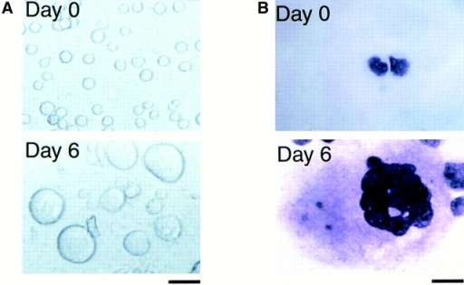 The expressions of AIM-1 and STK15 during the developmental processes of normal megakaryocytes. CD34+ cells were purified from normal human bone marrow cells, and then cultured with TPO (20 ng/ml) and PPP (20%) for the indicated times. (A) Phase–contrast micrographs of cells before and after the culture. Bar, 20 μm. (B) Light micrographs of cells. Cytocentrifugation preparations of the cells before and after the culture were stained with May-Grunwald-Giemsa. Bar, 10 μm. (C) DNA content of cultured cells was analyzed by flow cytometry before (dashed line) and after (solid line) culture. (D) Semiquantitative RT-PCR analysis on the expression of AIM-1 and STK15 mRNA. Total cellular RNA was isolated at the times indicated and cDNA was synthesized. The amounts of cDNA products were normalized according to the amounts of PCR products of GAPDH. The adjusted amounts of cDNA products from each sample were subjected to the PCR reaction for AIM-1, STK15, GPIIb, and GAPDH. The PCR products were size fractionated on 3.5% polyacrylamide gels, dried, and autoradiographed. NTC, no template control.