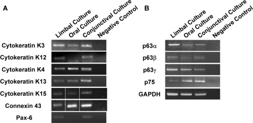 Expression of markers of epithelial stem cells and differentiation. RT-PCR analysis of expression of markers for epithelial differentiation (A) and stem cells (B) is shown. GAPDH was used as the normalizing control. The RT-PCR results of cytokeratin K5 and connexin 43 show a composite picture of PCR of cDNA from all three cells and the negative control that were performed in the same experiment. All experiments were performed twice with RNA isolated from a separate set of cultures.