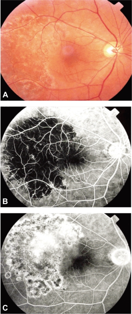 After 50 days, (A) Right fundoscopy revealed mass regression in size and height and resolved retinal detachment. (B, C) A right fluorescein angiogram revealed flat devascularized choroids. The venous phase showed leakages from the old lesion that affected the fovea
