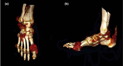 Computed tomography images demonstrating extensive tophaceous deposits. Three-dimensional volume-rendered computed tomography images of the right foot from a patient with chronic gout, demonstrating extensive tophaceous deposits (visualized as red) – particularly at the first metatarsal phalangeal joint, midfoot and Achilles tendon. (a) Dorsal view and (b) lateral view.