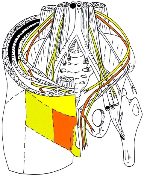 Fig5:Abdominal wall paresis as a complication of ...