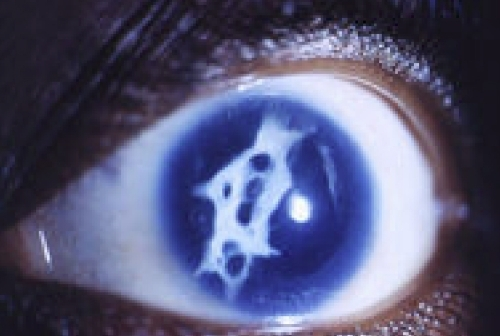 Patient photograph. Photographic image of the eye of Patient 2.