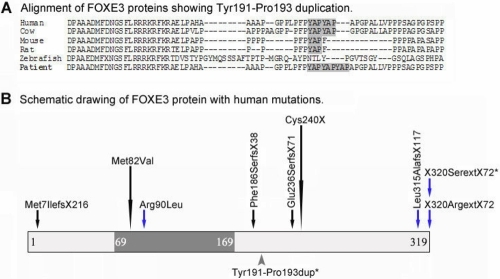 Summary of FOXE3 mutations. A: Alignment of FOXE3 proteins showing region of p.Tyr191-Pro193 duplication. Please note two YAP amino acid motifs present in normal human and cow FOXE3 proteins and an additional insertion of this motif identified in Patient 2. B: Schematic drawing of FOXE3 protein with human mutations. Forkhead domain is shown in dark gray. Mutations resulting in recessive phenotypes are indicated with black arrows while mutations causing dominant disease- with blue arrows. The variant identified in Patient 2 is indicated with a gray arrowhead below the protein. Recurrent mutations are denoted with extended arrows. Positions of mutations identified in this study are shown with asterisks.