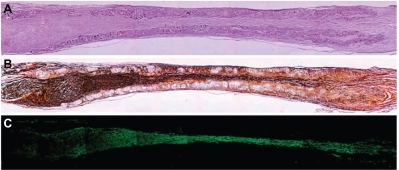 Longitudinal sections of nerve regenerated within the implanted guide channel. In the conduit, the regenerated nerve bridged the 10 mm gap, reconnecting the two sciatic nerve stumps. (A) Four months after surgery, hematoxilyn and eosin staining shows the presence of regenerated tissue filling the conduit lumen; decreased lumen diameter is observable at middle length of the guidance channel. Regenerated tissue positive to Bielschowsky staining (B) and to anti-β-tubulin antibody (C) shows nervous projections oriented along the major axis of the prosthesis bridging the 10 mm gap between the severed sciatic nerve stumps (image sequence collected at 4 × magnification).