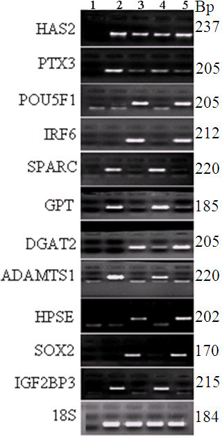 Validation of the microarray data by semi quantitative RT-PCR. A 2% agarose gel electrophoresis depicting the mRNA expression of genes that are exclusively expressed either in oocytes or CCs. Number 1 shows a negative control (dd water as a template) and 2, 3, 4 and 5 show the abundance levels of each transcript in MII CCs, MII oocytes, GV CCs and GV oocytes, respectively. 18S was used as a loading control for total RNA.