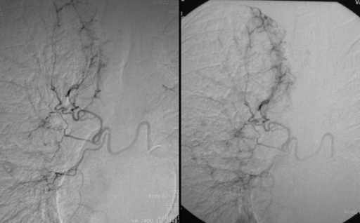 Selective catheterization of a hypertrophic right bronchial artery in a 56-year-old man with two episodes of severe hemoptysis. Bronchoscopy detected only some blood trails and clots in the right bronchial system, without conclusive evidence as to the origin of bleeding. Selective angiography of a hypertrophic right bronchial artery through a 5F cobra catheter demonstrates moderate hypervascularity, more prominent in the right upper lobe.