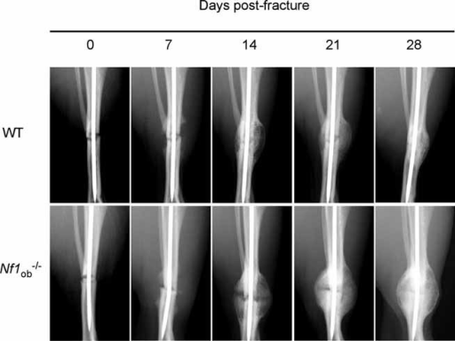 The late stages of bone healing days 21 to 28 in wt but not in mice