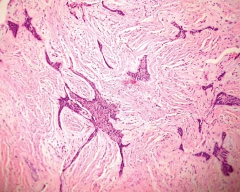 Figure 6:Unicystic ameloblastoma with diverse mural ...