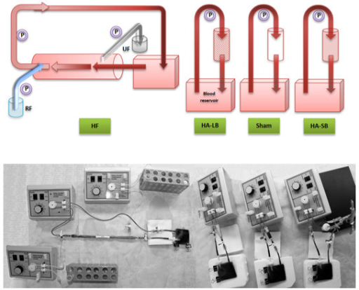 The four ex vivo miniaturized extracorporeal circuits (hemofiltration, hemadsorption with large beads, hemoadsorption with small beads and sham). Blood was circulated through these closed circuits for four hours. HA-LB, hemoadsorption with large beads; HA-SB, hemoadsorption with small beads; HF, hemofiltration; P, mini-pump; RF, replacement fluid; UF, ultrafiltrate.