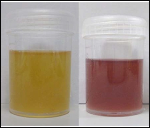 "Change in urine color before and after sun exposure Left figure is urine of the first day. Right figure is urine after sun exposure for 3 days. Urine color changed to ""port wine"" color after sun exposure. This color change is due to increased concentrations of porphyrin intermediates in the urine, indicating an abnormality in production and a partial block within the enzymatic porphyrin chain with metabolite formation. The urine color usually becomes darker with acute illness, even dark reddish or brown after sun exposure."