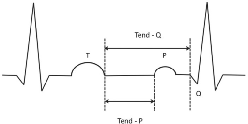 Schematic illustration of Tend-P and Tend-Q measurements.ECG-intervals of interest (Tend-P, Tend-Q) reflecting the mechanical diastole were both manually measured and calculated as: RR minus PQ minus QT for Tend-P and RR minus QT for Tend-Q.