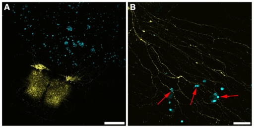 Representative confocal images from novel ex vivo organotypic spinal cord slice and co-culture model with C4-2B4 cells.A. Tile scan where YFP spinal cord is clearly positive as well as outgrowth of neurons with multiple nodal appearance (scale bar  =  500 µm) B. Higher magnification image of neuronal outgrowths from A. In this image C4-2B cells appear to associate with YFP+ nerve axons (red arrows, scale bar  =  100 µm).