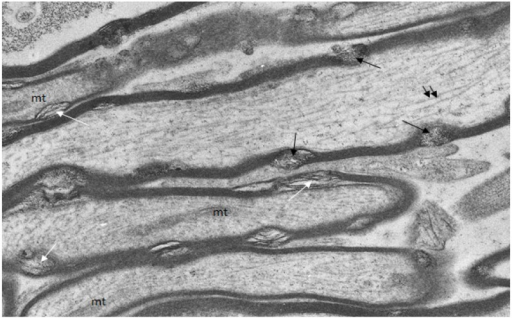 Longitudinal/transverse/oblique sections of uninjured optic nerve fibers fixed and processed using the pyroantimonate procedure to localize free calcium. Scattered along the length of the myelin sheaths of nerve fibers are foci of oval profiles at which myelin lamellae are separated such that individual lamellae are visible. These represent myelin discontinuities (md) (white arrows). Within several mds electron dense pyroantimonate precipitate occurs (black arrows) indicating the occurrence of free calcium therein. Mitochondria (mt) with a characteristic cristate ultrastructure and longitudinally orientate microtubules (double arrows) occur within the axoplasm.