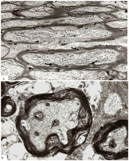 Thin sections of stretch-injured optic nerve at 12 h survival. Tissue was processed using the pyroantimonate technique. (a) At lower magification of longitudinal/oblique sections of nerve fibers nodal structure appears normal (center) except for some disruption of the paranodal myelin. In the larger caliber nerve fibers, however, mds now extend either inside (myelin intrusions, mi) or outside (external protrusions, ep) the thickness of the myelin sheath and contain pyroantimonate precipitate. Myelin discontinuities/intrusions/extrusions are more numerous in larger than in the smaller fibers (within the oval profile above the node of Ranvier). The greater circumferential disruption formed by md, mp and me is obvious in transverse sections of nerve fibers (b) and are more numerous and extensive within the myelin sheath of larger fibers. The axons have an irregular cross-section and a number of periaxonal spaces (pa) occur between the axon and the myelin sheath. Mitochondria within the axoplasm either contain aggregates of pyroantimonate precipitate (arrow) or have a central lacuna (double arrow). The axoplasm of the nerve fibers contains closely spaced microtubules and neurofilaments which form spiral arrays. Magnification (a) 7500×; (b) 23,450×.