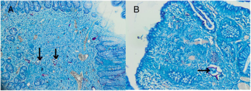 Ziehl–Neelsen staining of the pathology slide. These two pictures demonstrate the Schistosoma eggs after Ziehl–Neelsen coloration. Magnification A ×40, B ×200. Schistosoma mansoni eggs are elongate and possess a lateral spine. The shell is acid-fast when stained with Ziehl–Neelsen stain (arrows).
