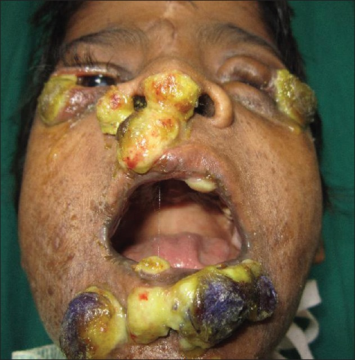 Nodules In Mouth 70