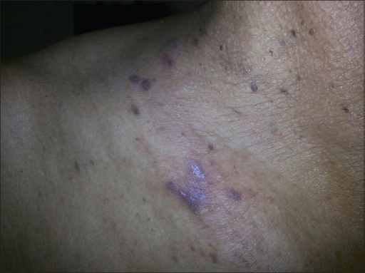 Violaceous papules on the neck
