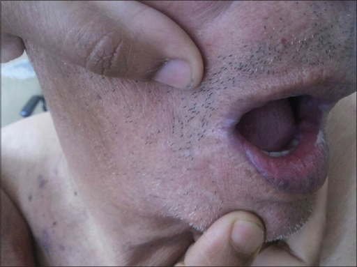 Violaceous pigmentation of lower lip and angles of the mouth