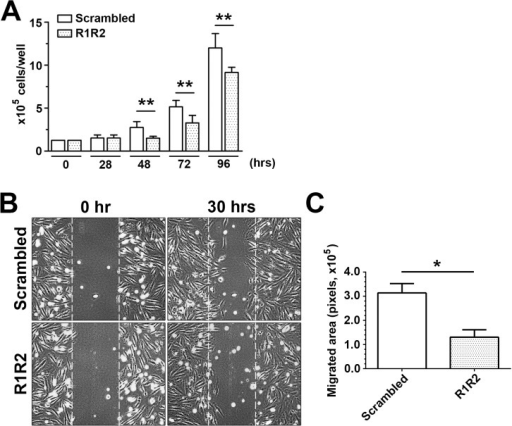 R1R2 reduces SMC proliferation and migration.(A) A7r5 SMC growth study over 96 hours. After serum starvation and treatment with R1R2 or scrambled peptides for 36 hours, cells were stimulated with 10% FBS over 96 hours. Cells were counted at the indicated time in the figure (n = 5). (B) A7r5 SMCs were pretreated with R1R2 or scramble peptide for 36 hours. SMCs underwent a scratch wound injury and were then stimulated with 10 ng/ml PDGF-BB for 30 hours. Representative images from the scratch wound assays are shown. (C) Quantitation of SMC migration in the scratch wound healing assay was performed by subtracting the cell-free area 30 hours after PDGF-BB stimulation from the cell-free area in the beginning (n = 5). * indicates p<0.05 and ** p< 0.01.