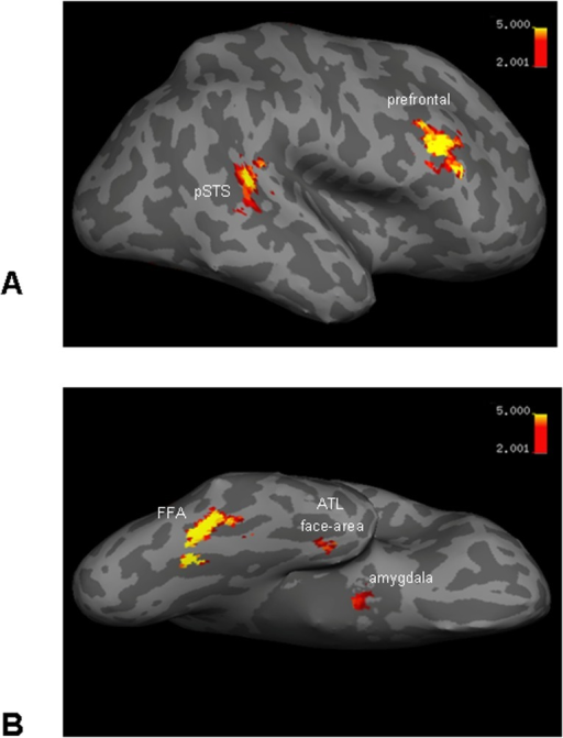 Face-selective areas of one representative participant (inflated cortex, right hemisphere).(A) Lateral brain view: posterior STS and prefrontal face-selective areas. (B) Ventral brain view: FFA, ATL face-area and amygdala face-selective areas.