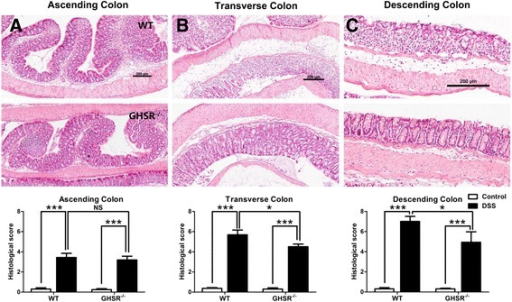 Histopathological analysis for the acute DSS-induced colitis in WT and GHSR−/−mice. Colons from DSS-treated WT and GHSR−/− mice were collected and prepared for H&E staining. The mucosal damage/inflammation in ascending (A), transverse (B) and descending portions (C) were estimated using a histological scoring system. Each bar represents the mean ± SEM; NS: no significance, * p < 0.05 and *** p < 0.005.