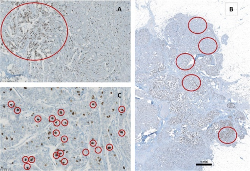 Illustration of different Ki-67 assessment methods.A) Analysis of hotspots. B) Analysis of different areas. C) Analysis of only darkly stained nuclei.