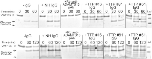 ADAMTS13 inhibition is mediated by anti-spacer antibodies.ADAMTS13 activity assays using VWF115 (top) and VWF106 (bottom) in the presence and absence of isolated IgG samples. 2 nM ADAMTS13 proteolysed VWF115 into 10 kDa and 6.9 kDa fragments (− IgG), within 60 min. 17 μM normal human IgG (NH IgG) did not inhibit this reaction, whereas 7 μM rabbit polyclonal anti-ADAMTS13 led to complete inhibition. Identical reactions containing isolated total IgG (17 μM) from TTP patient samples #16, #81 (remission sample) and #61 are shown (* denotes contaminating band from IgG extraction). In parallel, proteolysis of VWF106, which lacks 9 residues that are critical to ADAMTS13 spacer domain binding, was investigated using 3.5 nM ADAMTS13 and 2 hour reaction times. Under these conditions, VWF106 was only partially proteolysed by ADAMTS13 after 120 min (− IgG). Cleavage was unaffected by normal IgG (NH IgG), but completely inhibited by rabbit polyclonal anti-ADAMTS13. Reactions containing isolated total IgG (29 μM) from TTP patient samples #16, #81 and #61 are shown. TTP patient IgG does not inhibit proteolysis of VWF106.
