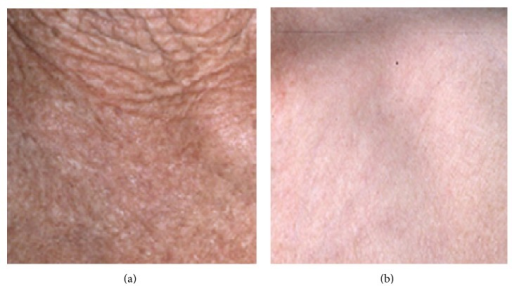 Clinical appearance of extrinsic (a) and intrinsic (b) aging of skin.