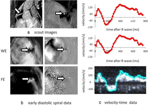 a Segmented gradient echo scout images showing in-plane (left) and proximal through-plane (right) right coronary artery (arrows). b Single early diastolic frame from the corresponding high temporal resolution spiral phase velocity mapping study acquired with water-excitation (WE) (magnitude image on left, velocity map on right) together with corresponding fat-excitation (FE) images. c CMR velocity-time curve before (top) and after (middle) correction for through-plane velocity of the vessel and corresponding Doppler guide wire trace (bottom). On the Doppler guidewire trace, the peak pixel velocity within the sample volume is highlighted in blue