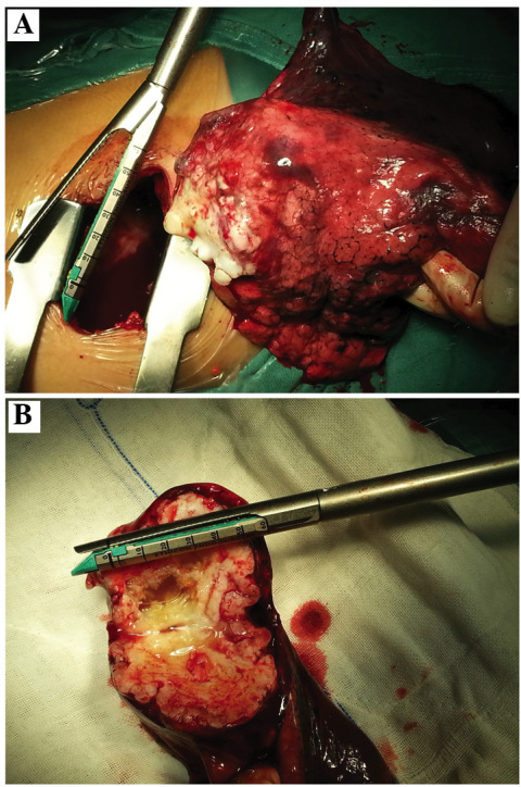 Images of the resected mass. (A) Patients with pulmonary chondroma underwent lobectomy intraoperatively. (B) The mass was pale and translucent, hard, and lobulated on the lateral section.