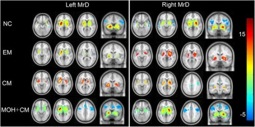 MrD functional connectivity averaged over subject in the brain. Warm and cool colors represent positive and negative correlations. NC, normal control; EM, episodic migraine; CM, chronic migraine; MOH+CM, medication overuse headache plus chronic migraine;L, left MrD; R, right MrD