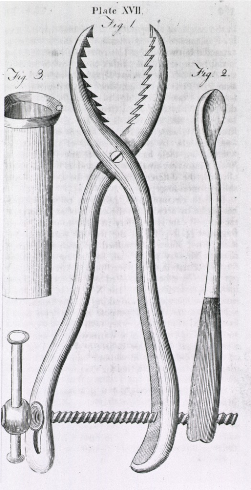 <p>Forceps with sawtooth jaws, and a screw mechanism on the handles for crushing stones; scoop for removal of stones.</p>