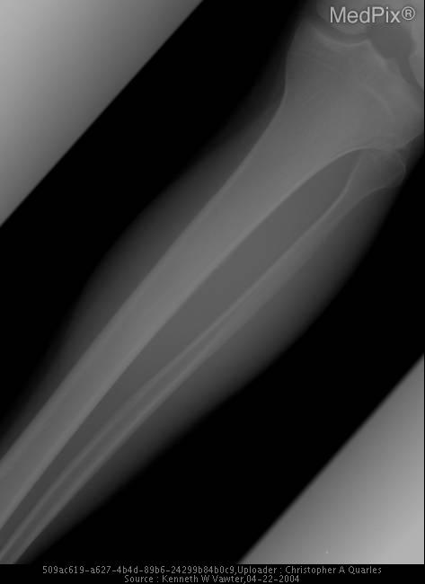 Tibia Stress Fracture 1