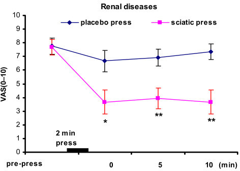 "Immediate relief of pain in renal patients. * p < 0.05, **p < 0.01 indicate significant difference between the ""placebo press"" and the ""sciatic press"". Results represent the mean (± SE)."