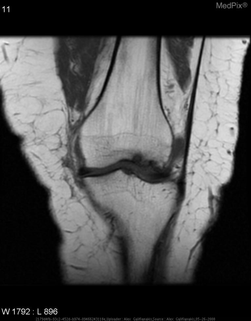 Area of low T1 signal representing focus of osteonecrosis.