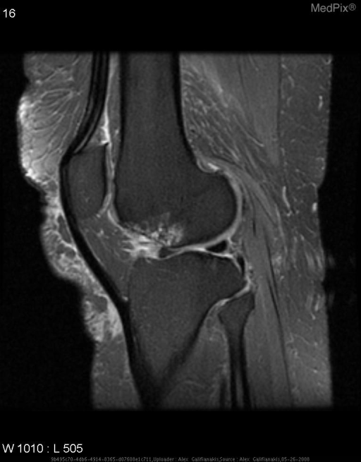 Osteonecrotic focus demonstrated as low T2 signal with a larger area of surrounding marrow edema evident.