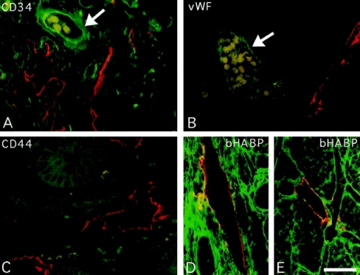 Immunofluorescent  staining of LYVE-1 in lymphatic  vessels and colocalization with  HA. Sections of human small intestine were double stained for  LYVE-1, CD44, the vascular endothelial molecules CD34 and  vWF, and for HA, by indirect  immunofluorescence microscopy, using Texas red or fluorescein-conjugated secondary antibodies or bHABC as described  in Materials and Methods. The  antibody combinations were as  follows: A, LYVE-1 (red) and  CD34 (green); B, LYVE-1 (red)  and vWF (green); C, LYVE-1  (red) and CD44 (green); and D  and E, LYVE-1 (red) and  bHABC (green). Arrows depict  small blood vessels containing  erythrocytes (pale yellow/ green), which are LYVE-1-ve.  Lymph vessel endothelium positive for both LYVE-1 and HA  in D and E is stained yellow/orange. Bar, 50 μm.