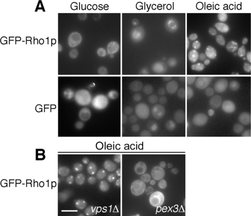 Rho1p associates dynamically with peroxisomes. The distribution of GFP-Rho1p was observed in glucose-, glycerol-, and oleic acid–incubated cells. GFP-Rho1p localized to intracellular membrane structures in glucose- and glycerol-incubated cells. In conditions that induce peroxisomes (oleic acid), GFP-Rho1p localized to distinct punctate structures. (B) In oleic acid–induced vps1Δ cells, which contain few peroxisomes, GFP-Rho1p localized to one or two punctate structures per cell. However, in pex3Δ cells, which are defective in peroxisome biogenesis, GFP-Rho1p failed to accumulate in punctate structures. Bar, 10 μm.