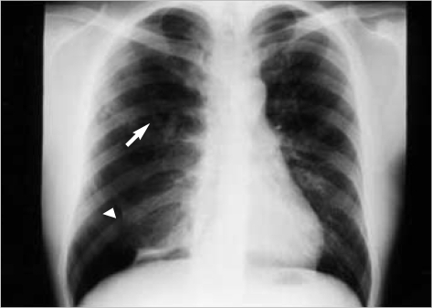 A posteroanterior chest radiograph reveals increased radiolucency along with overinflated lung parenchyma and sparse vasculature in the upper half of the right lung. Also noted v-shaped branching opacity is in the right parahilar area (arrow). Pneumothorax is associated in the right lower pleural cavity (arrow head).